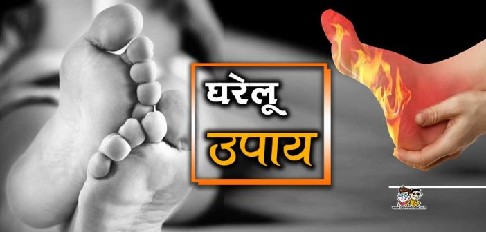 Home Remedies For चिलब्लेन