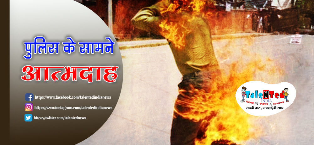 Unhappy Businessman With Police Set Himself Burnt In Meerut