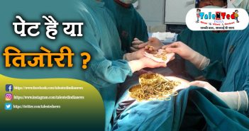 1.5Kg Ornaments Coins Removed From Woman Stomach In West Bengal
